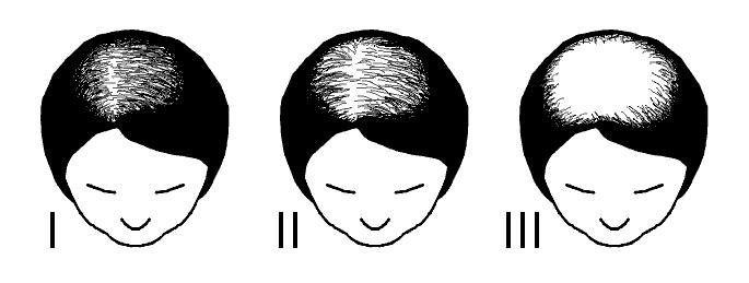 Ludwig Schaal voor  haarverliesvolgens Vrouwelijk Patroon